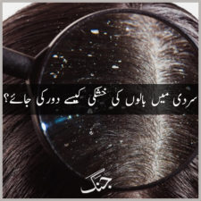 getting rid of dandruff in winters